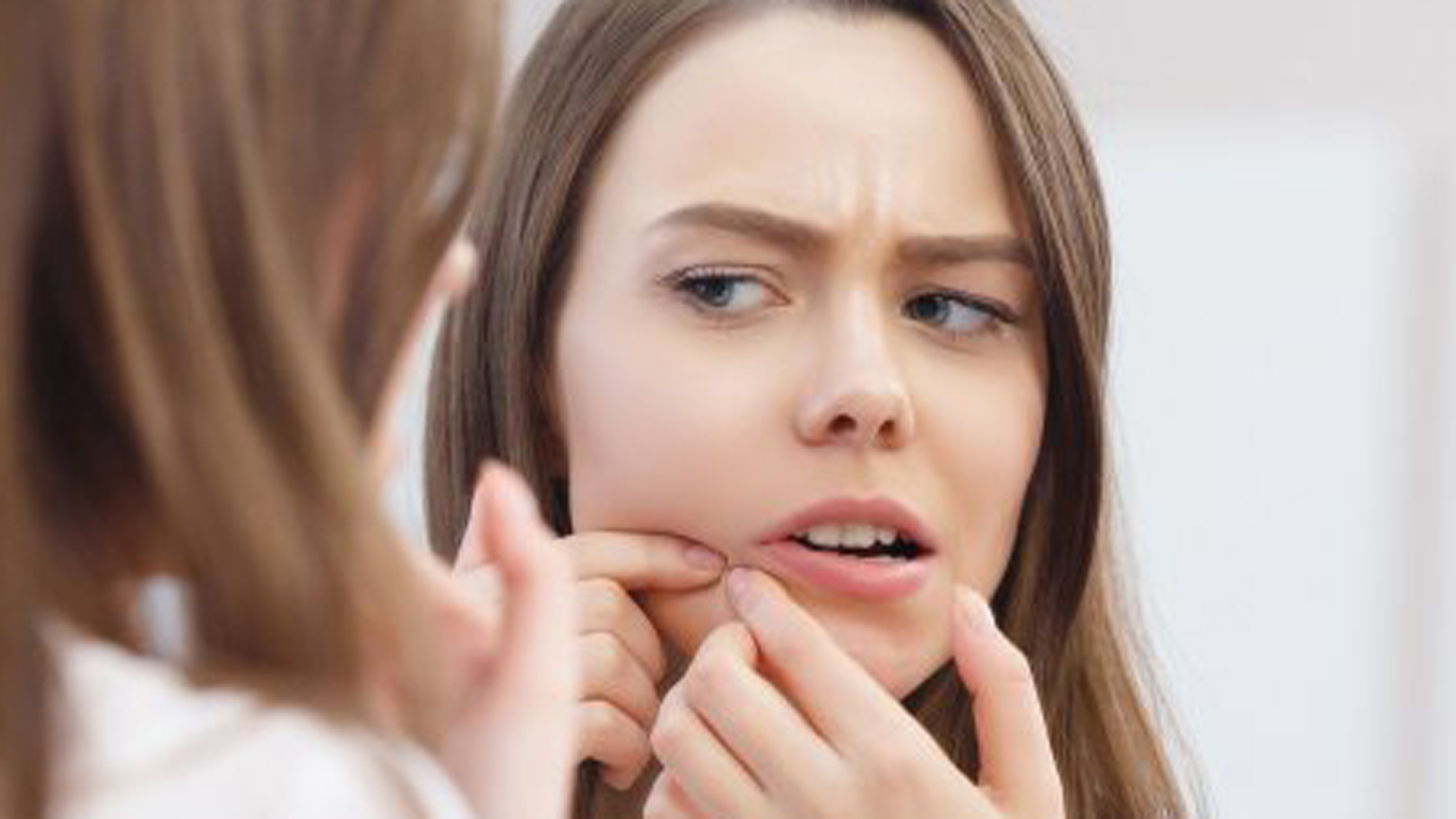 What_you_don_t_know_about_pimples